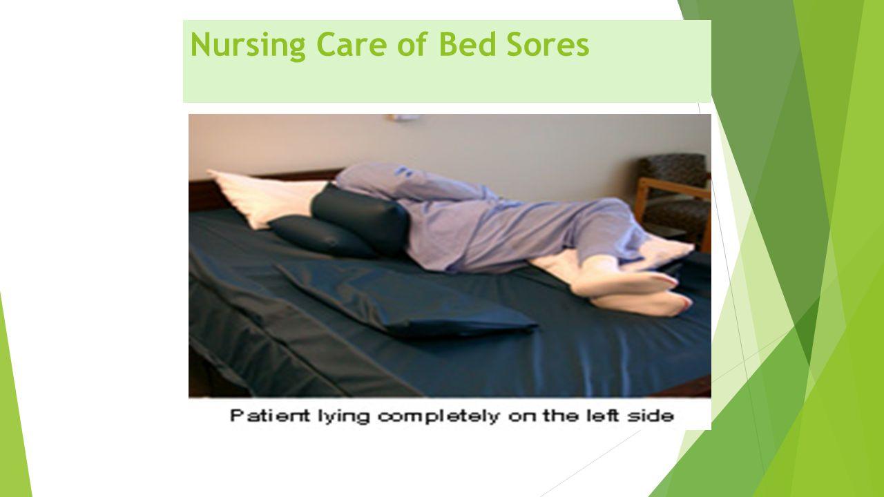 Nursing Care of Bed Sores