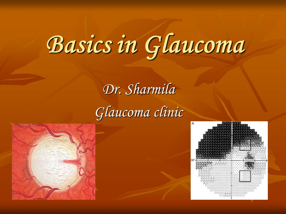 Dr. Sharmila Glaucoma clinic