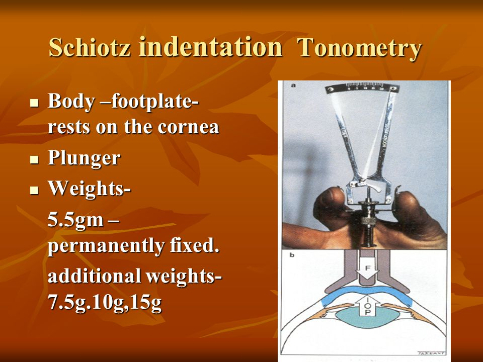 Schiotz indentation Tonometry