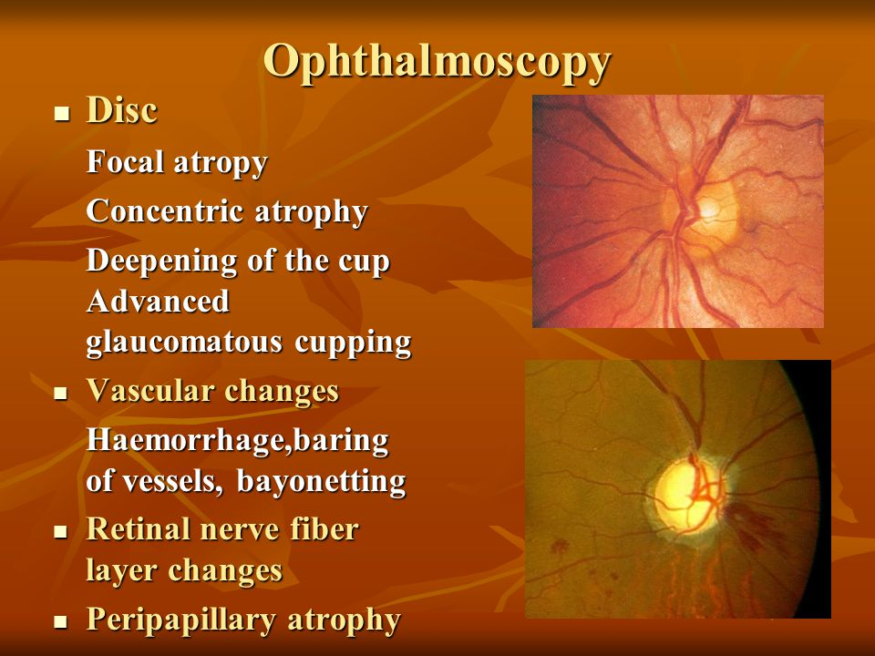 Ophthalmoscopy Disc Focal atropy Concentric atrophy