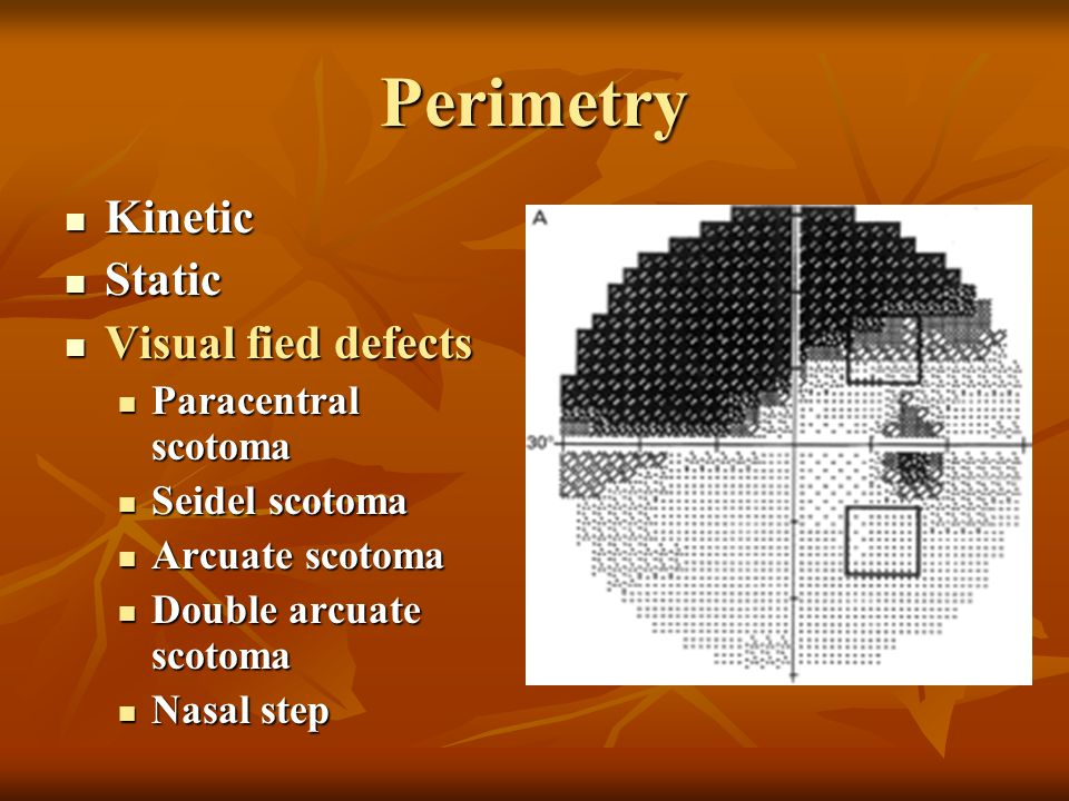 Perimetry Kinetic Static Visual fied defects Paracentral scotoma