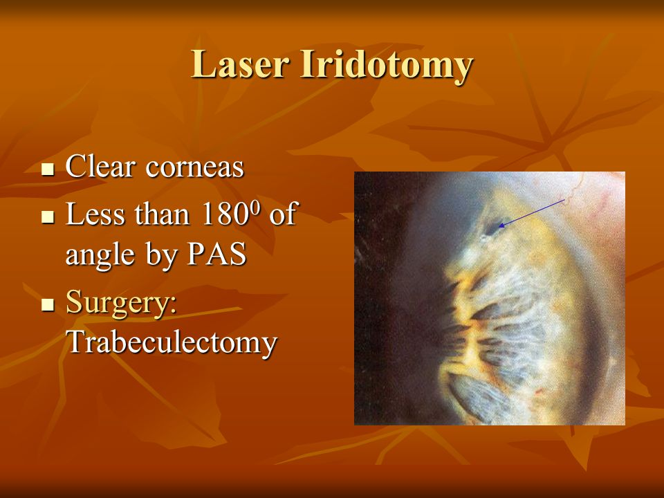 Laser Iridotomy Clear corneas Less than 1800 of angle by PAS