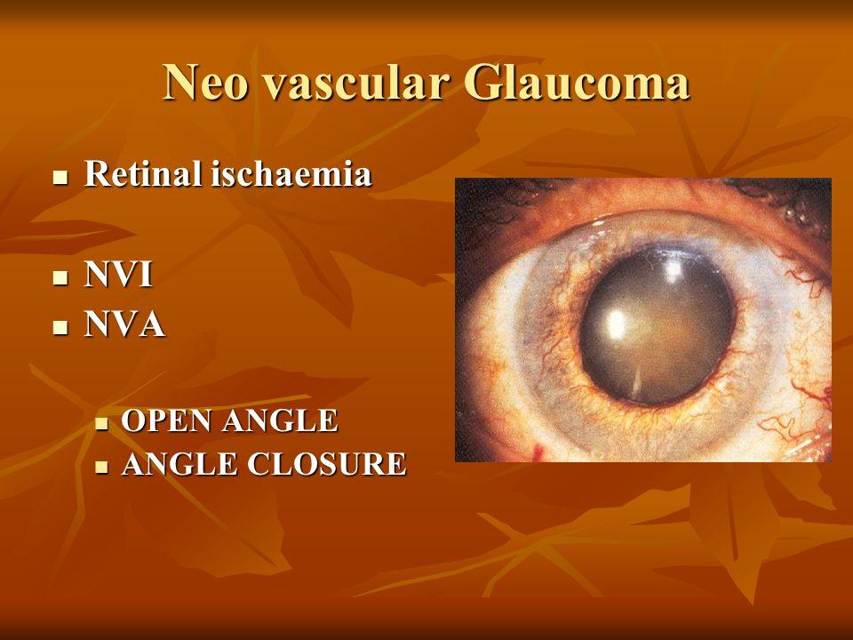Neo vascular Glaucoma Retinal ischaemia NVI NVA OPEN ANGLE