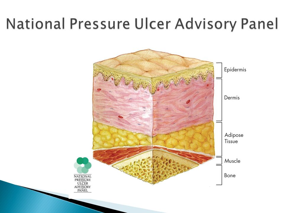 National Pressure Ulcer Advisory Panel