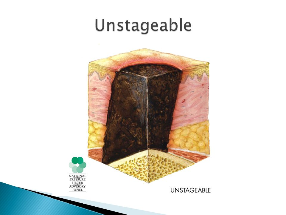 Unstageable