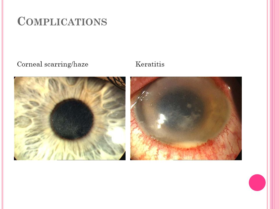 Complications Corneal scarring/haze Keratitis