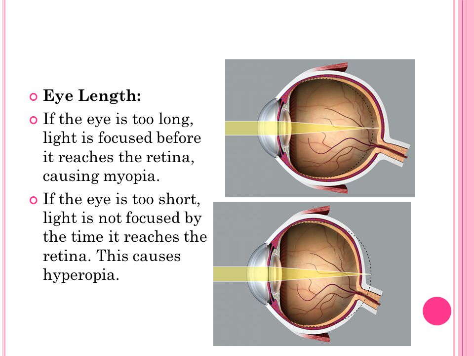 Eye Length: If the eye is too long, light is focused before it reaches the retina, causing myopia.