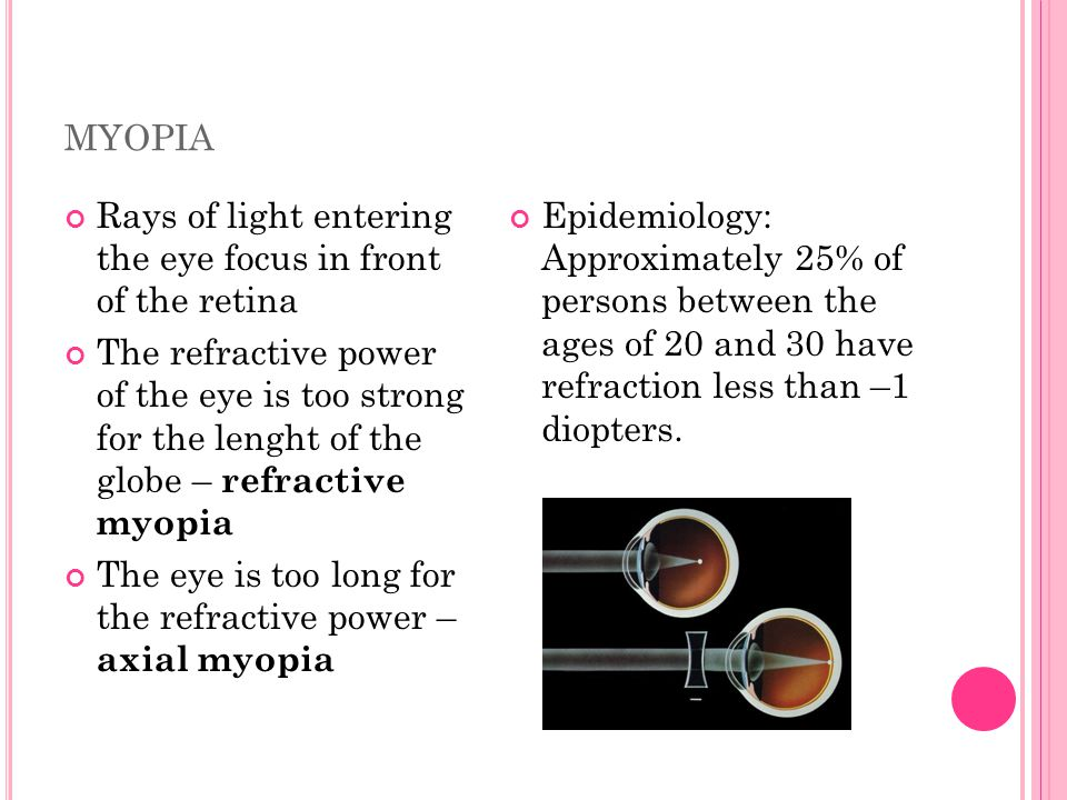 myopia Rays of light entering the eye focus in front of the retina