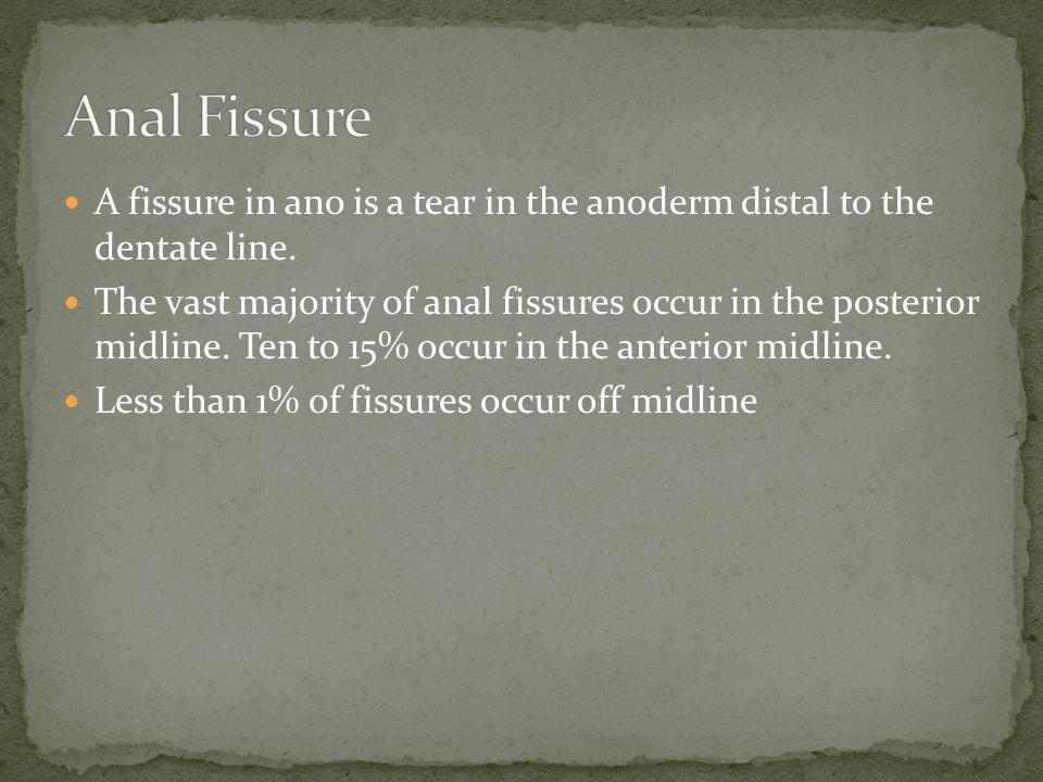 Anal Fissure A fissure in ano is a tear in the anoderm distal to the dentate line.