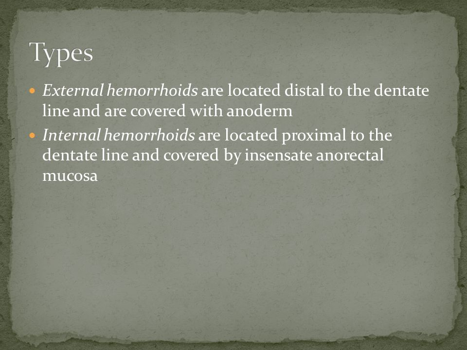Types External hemorrhoids are located distal to the dentate line and are covered with anoderm.