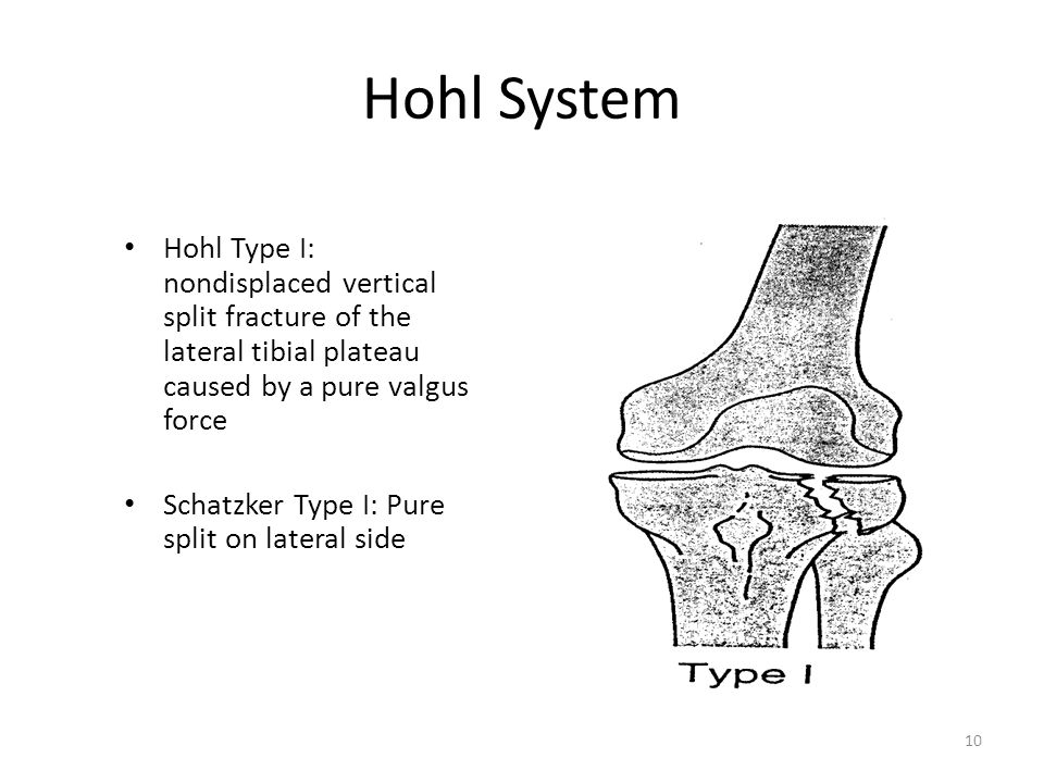 Hohl System Hohl Type I: nondisplaced vertical split fracture of the lateral tibial plateau caused by a pure valgus force.
