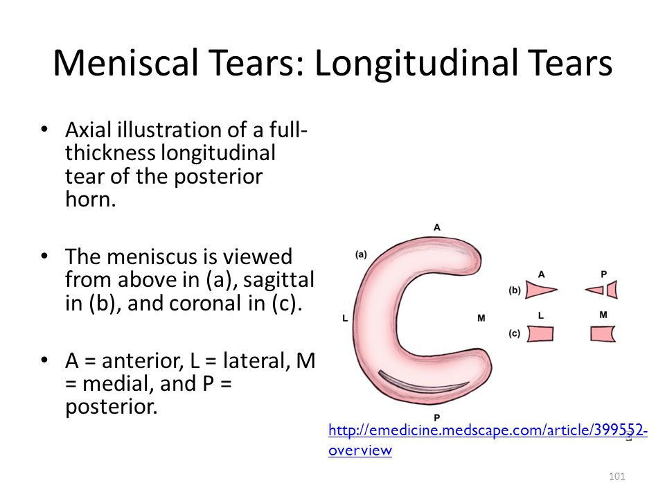 Meniscal Tears: Longitudinal Tears