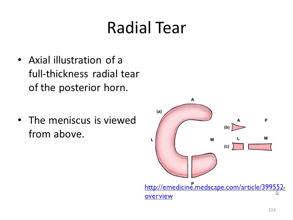 Radial Tear Axial illustration of a full-thickness radial tear of the posterior horn. The meniscus is viewed from above.