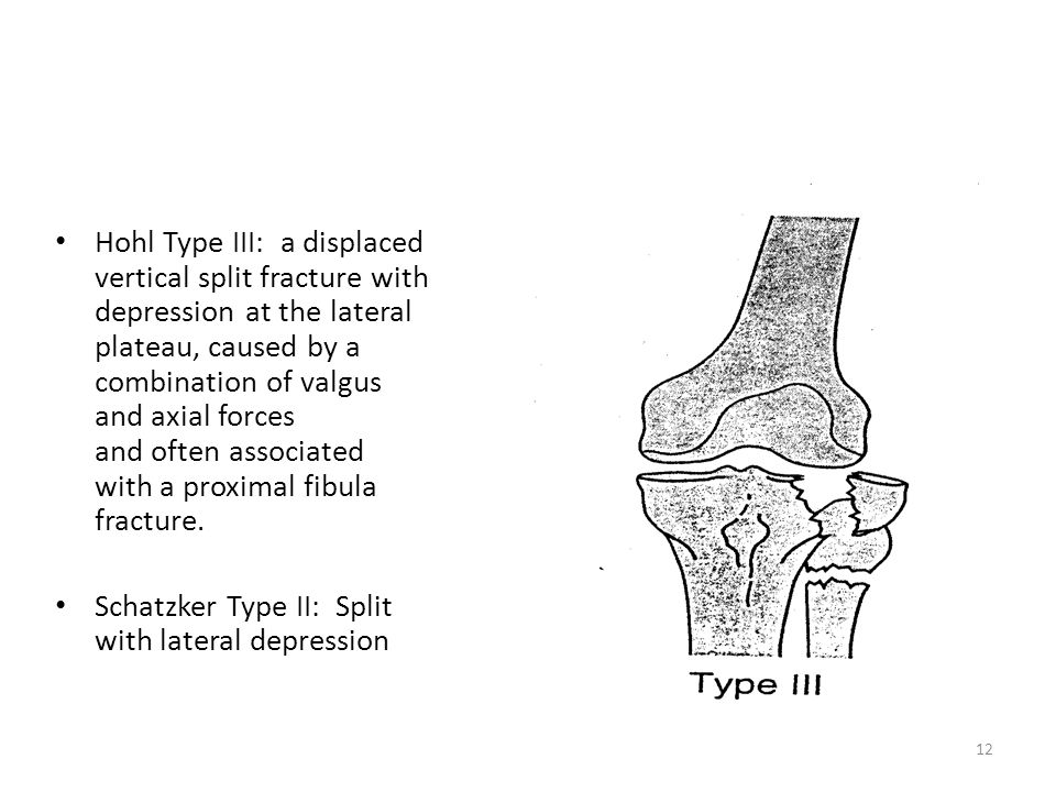 Hohl Type III: a displaced vertical split fracture with depression at the lateral plateau, caused by a combination of valgus and axial forces and often associated with a proximal fibula fracture.