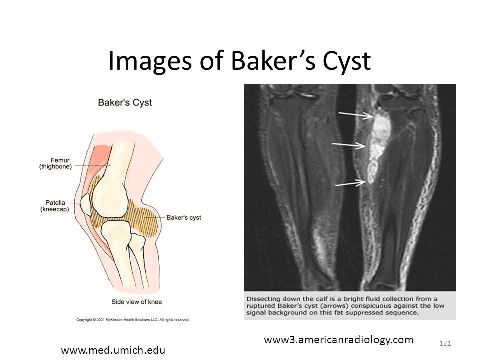 Images of Baker's Cyst www3.americanradiology.com www.med.umich.edu