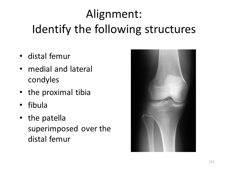 Alignment: Identify the following structures