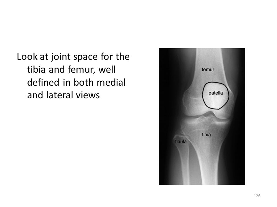 Look at joint space for the tibia and femur, well defined in both medial and lateral views