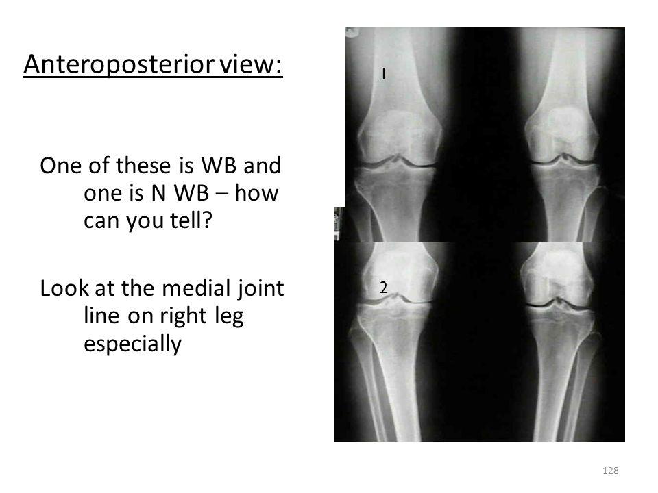 Anteroposterior view: