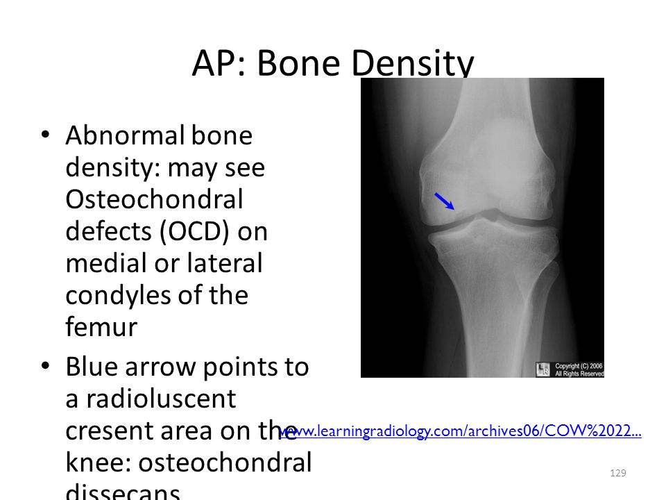 AP: Bone Density Abnormal bone density: may see Osteochondral defects (OCD) on medial or lateral condyles of the femur.