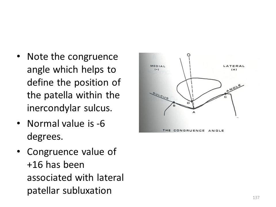 Note the congruence angle which helps to define the position of the patella within the inercondylar sulcus.