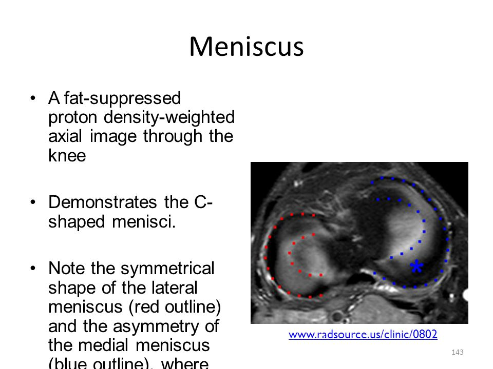 Meniscus A fat-suppressed proton density-weighted axial image through the knee. Demonstrates the C-shaped menisci.