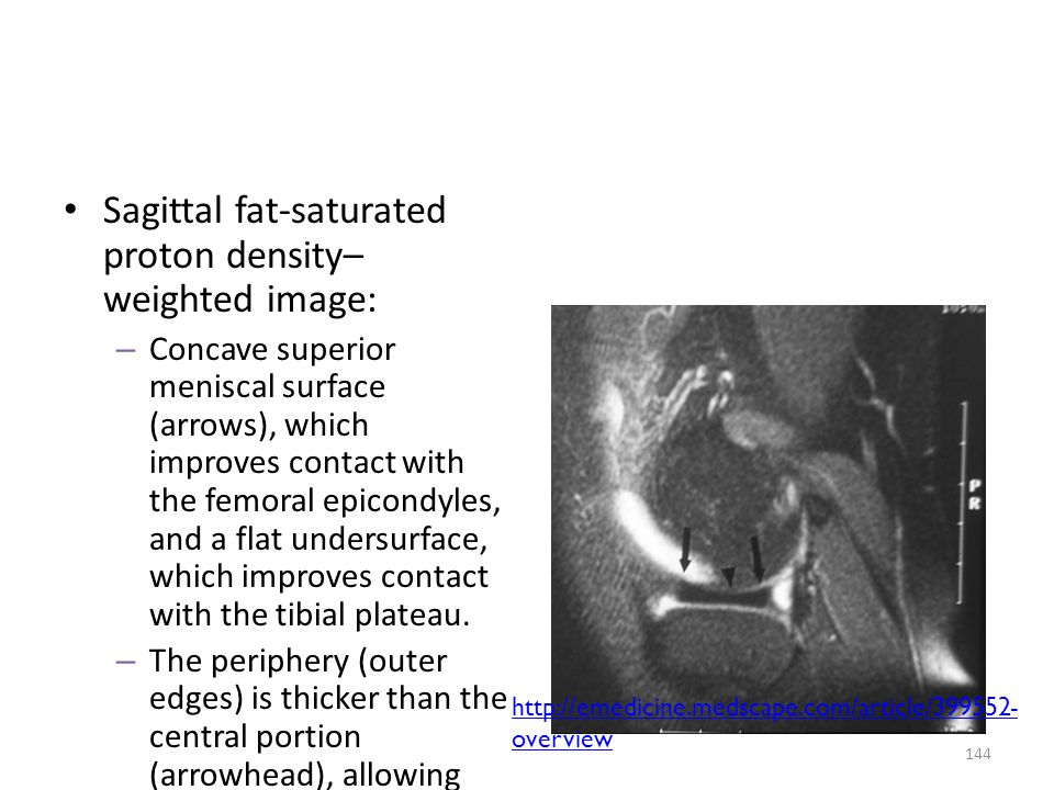 Sagittal fat-saturated proton density–weighted image: