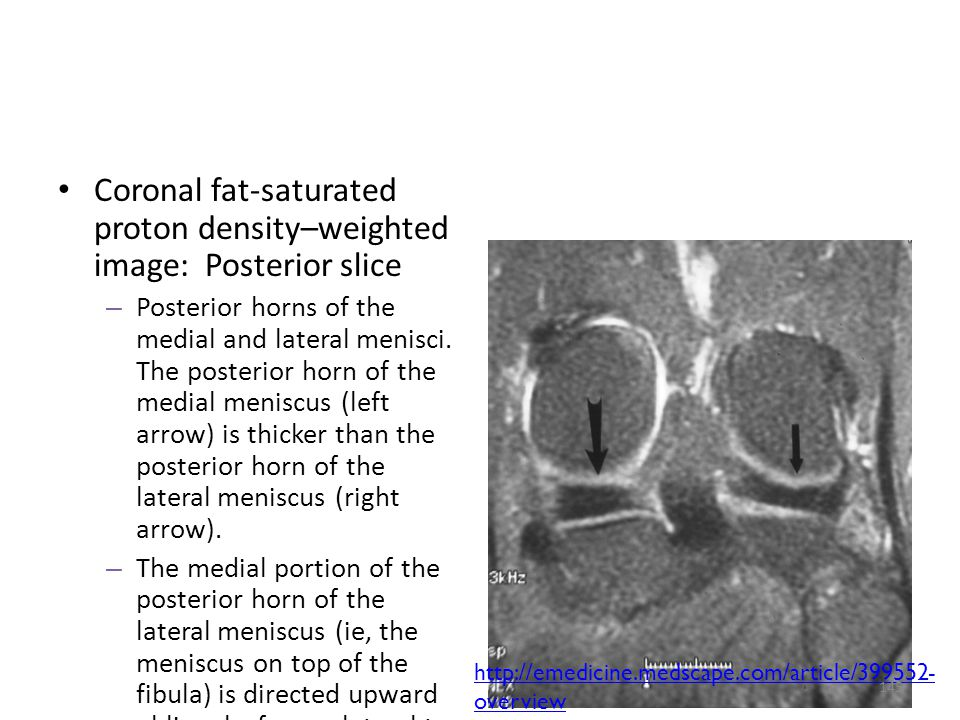 Coronal fat-saturated proton density–weighted image: Posterior slice