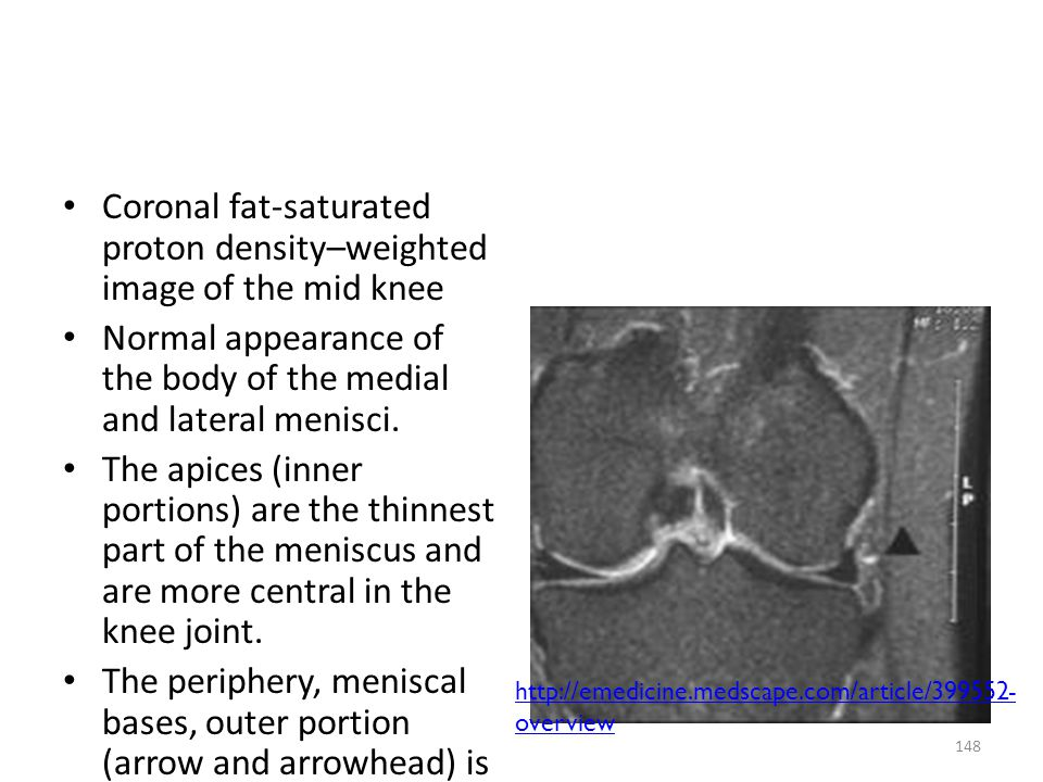 Coronal fat-saturated proton density–weighted image of the mid knee