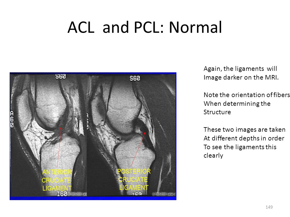 ACL and PCL: Normal Again, the ligaments will Image darker on the MRI.