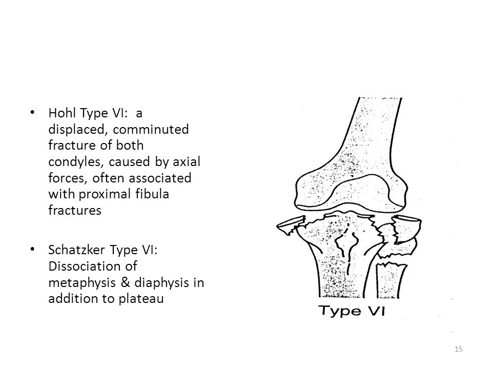 Hohl Type VI: a displaced, comminuted fracture of both condyles, caused by axial forces, often associated with proximal fibula fractures