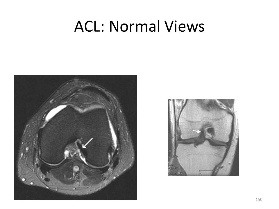 ACL: Normal Views