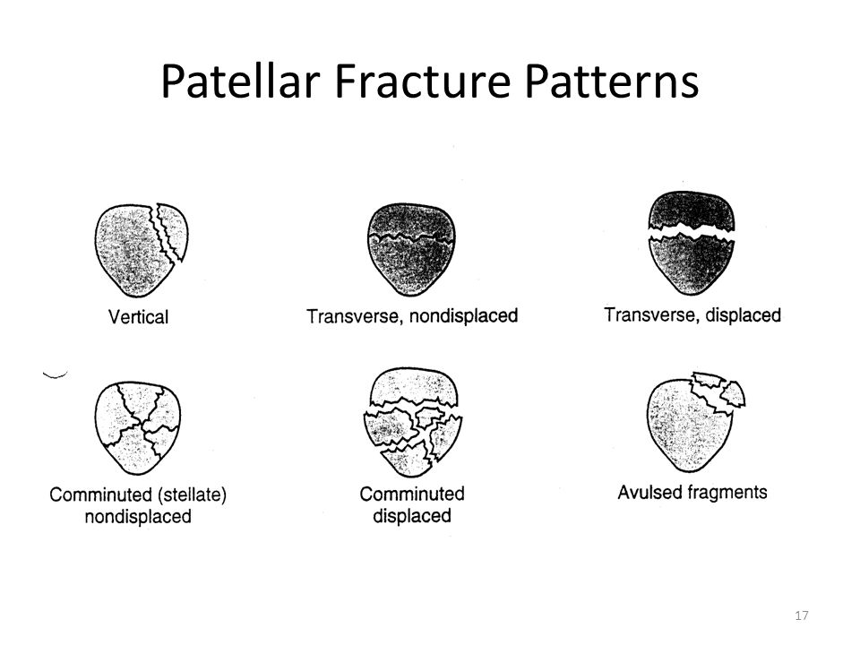 Patellar Fracture Patterns