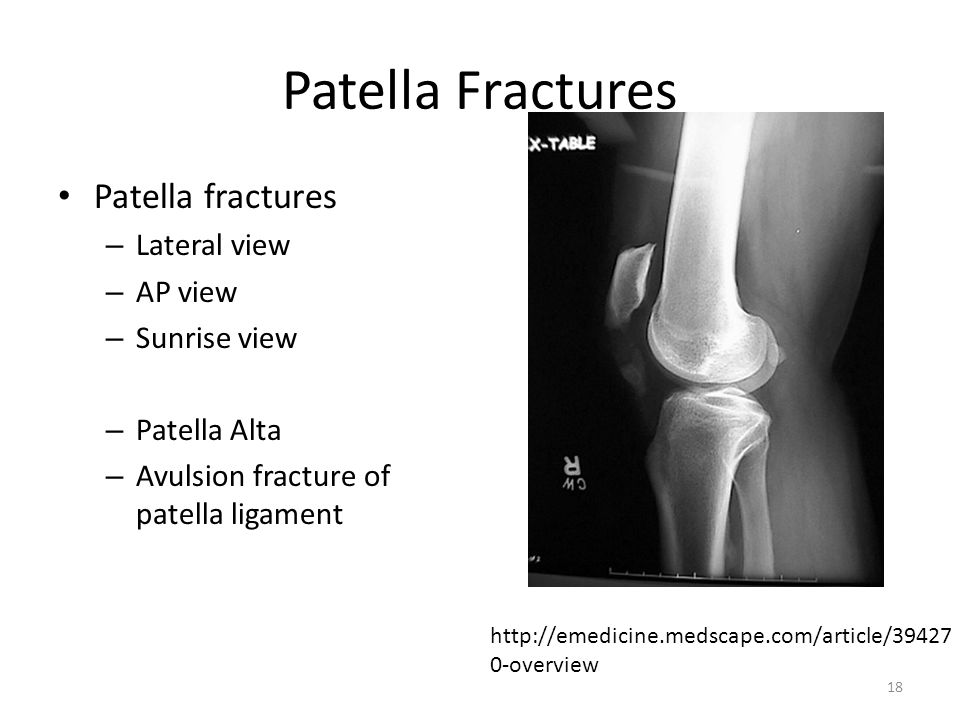 Patella Fractures Patella fractures Lateral view AP view Sunrise view