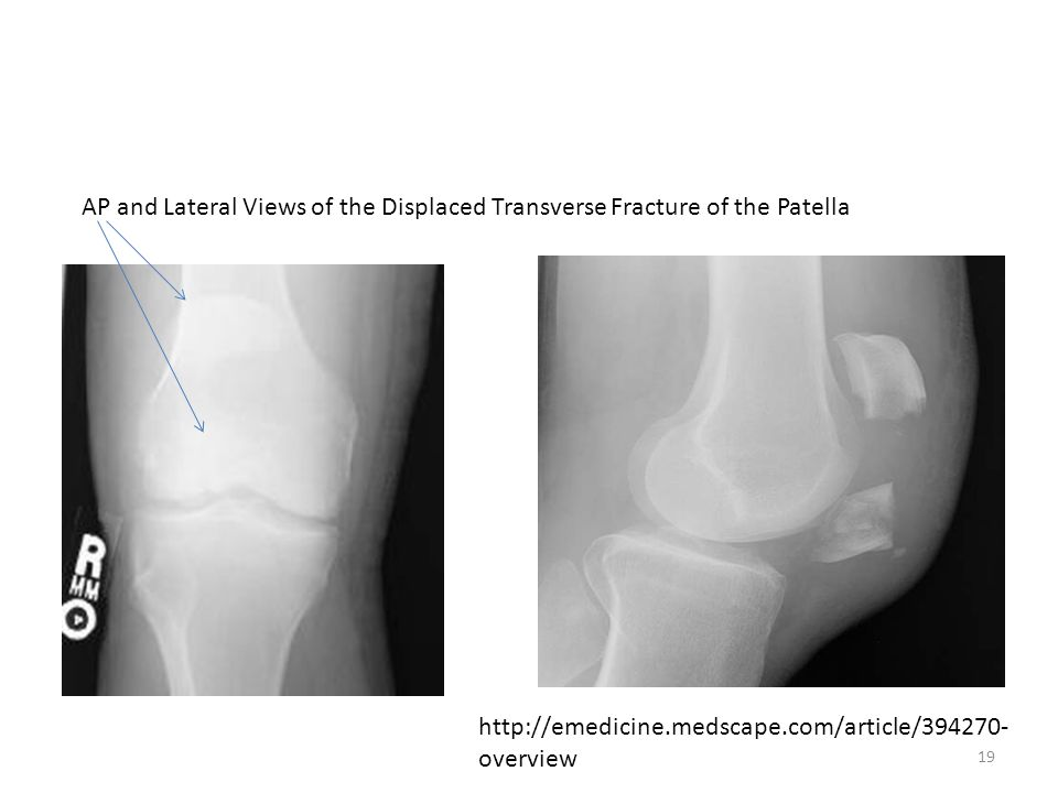 AP and Lateral Views of the Displaced Transverse Fracture of the Patella