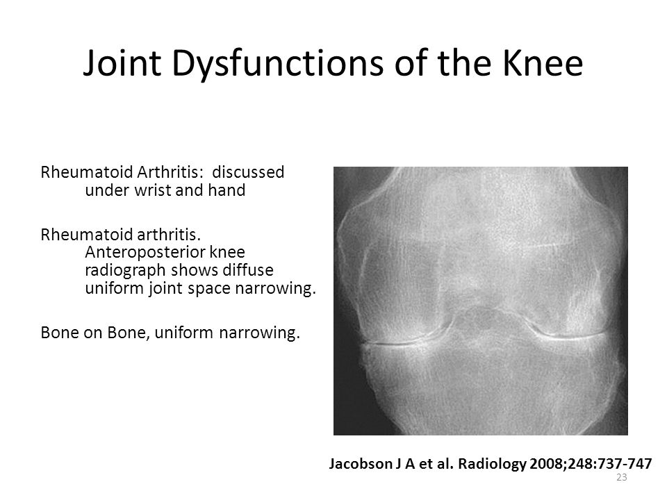 Joint Dysfunctions of the Knee