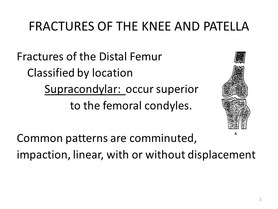 FRACTURES OF THE KNEE AND PATELLA