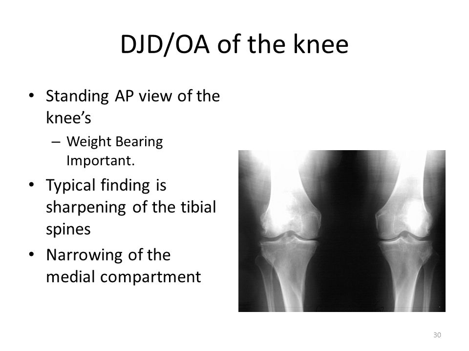 DJD/OA of the knee Standing AP view of the knee's