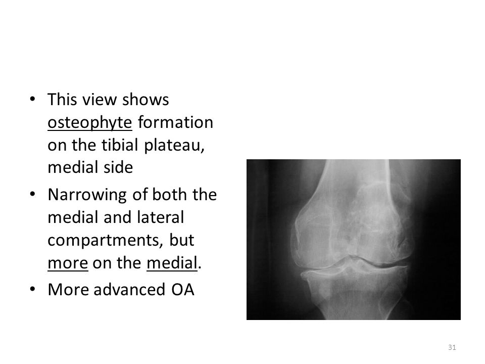 This view shows osteophyte formation on the tibial plateau, medial side