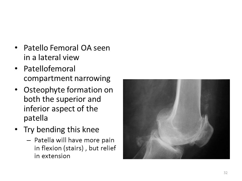 Patello Femoral OA seen in a lateral view