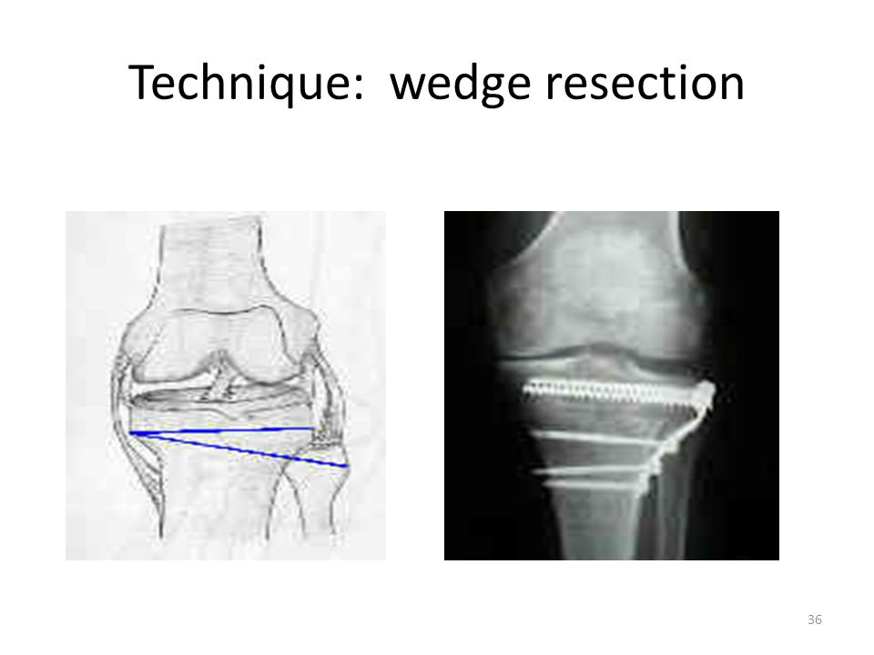 Technique: wedge resection