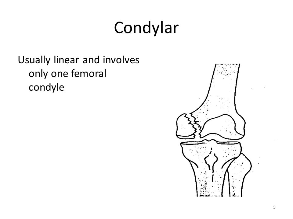 Condylar Usually linear and involves only one femoral condyle
