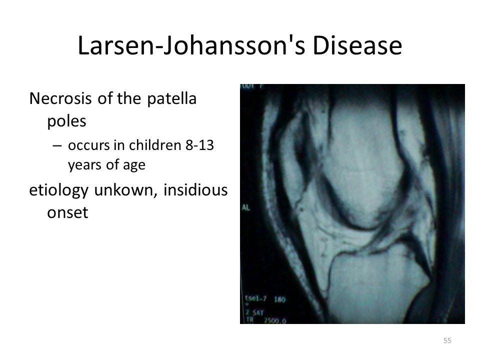 Larsen-Johansson s Disease