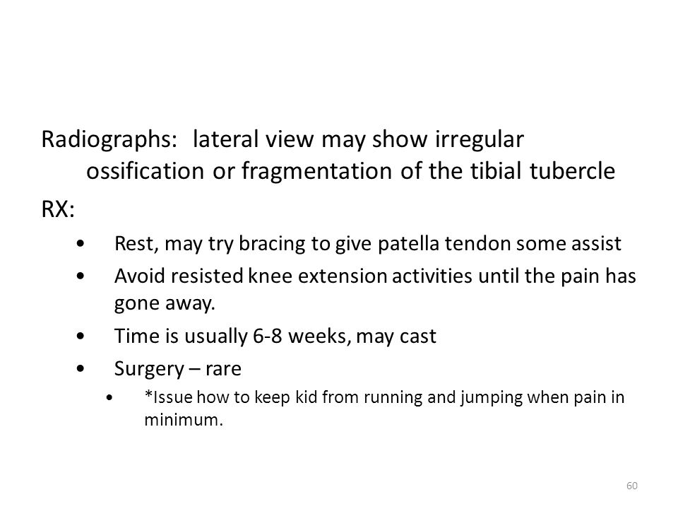 Radiographs: lateral view may show irregular ossification or fragmentation of the tibial tubercle