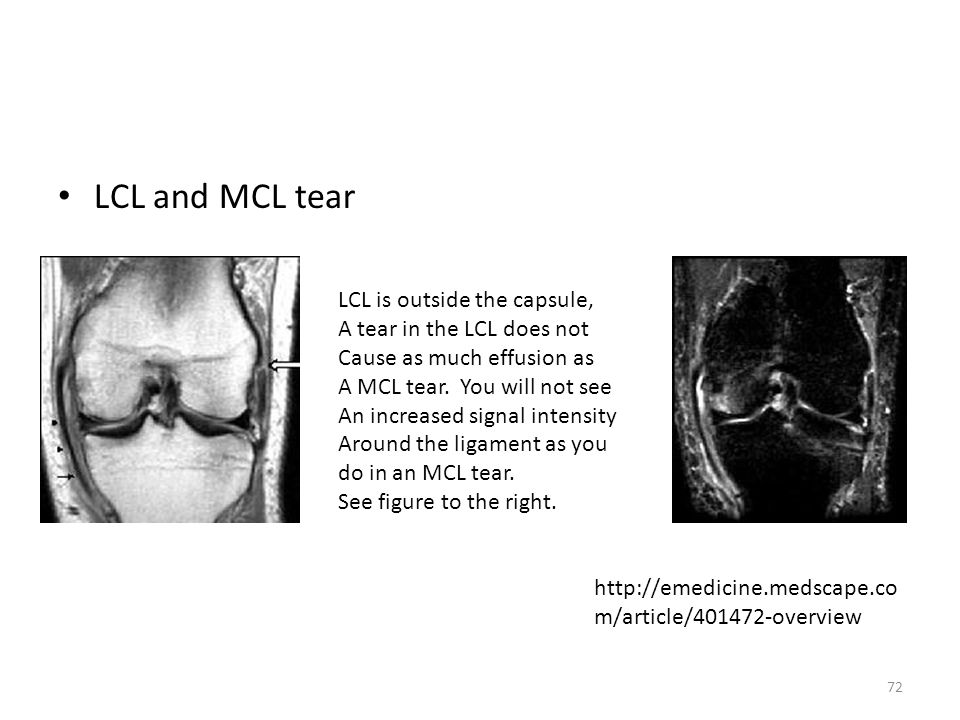LCL and MCL tear LCL is outside the capsule,