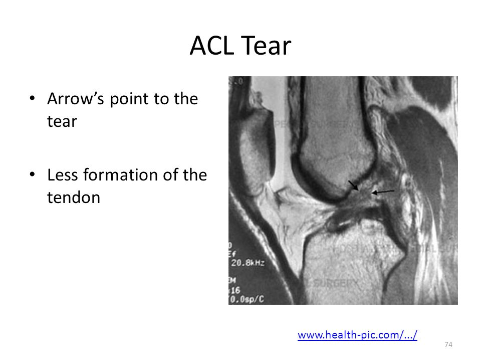 ACL Tear Arrow's point to the tear Less formation of the tendon
