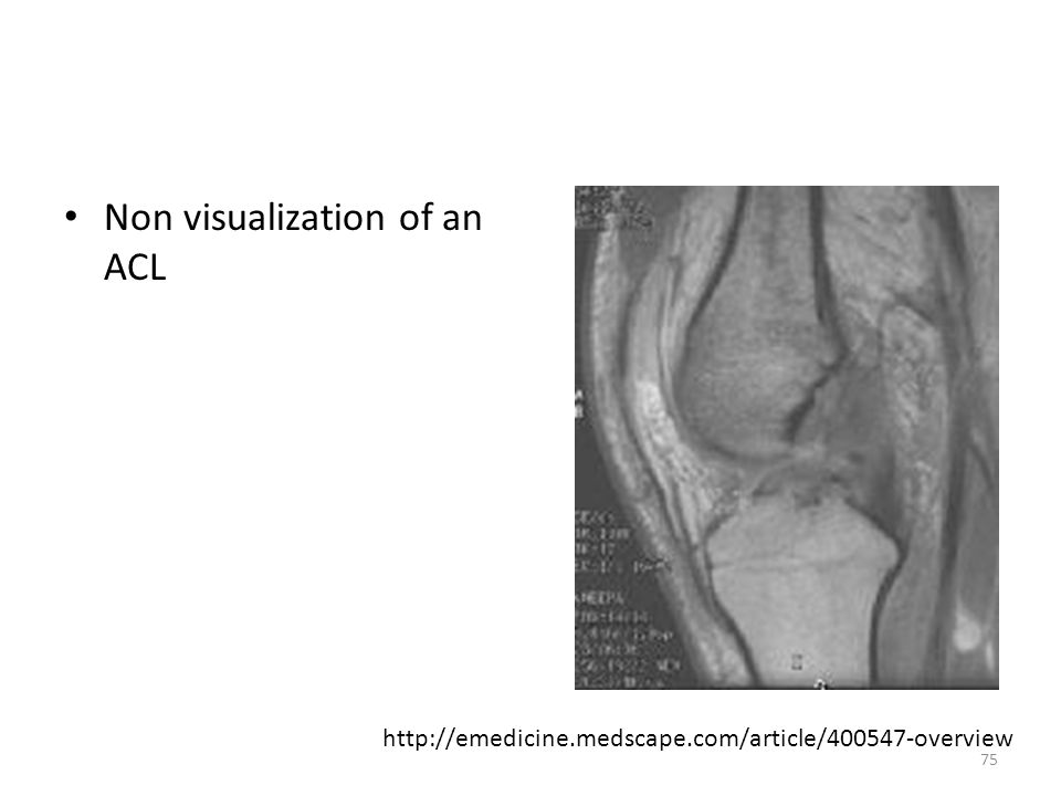 Non visualization of an ACL