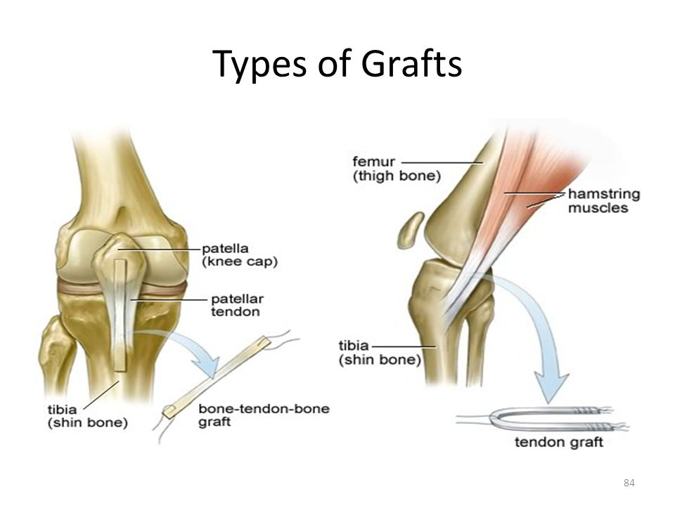 Types of Grafts