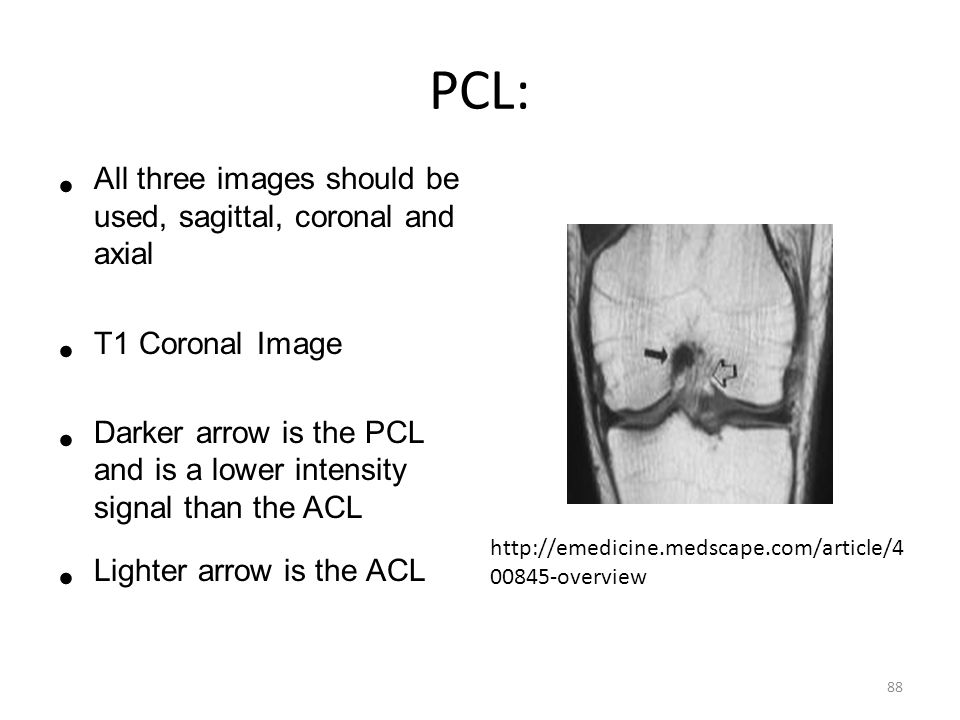 PCL: All three images should be used, sagittal, coronal and axial