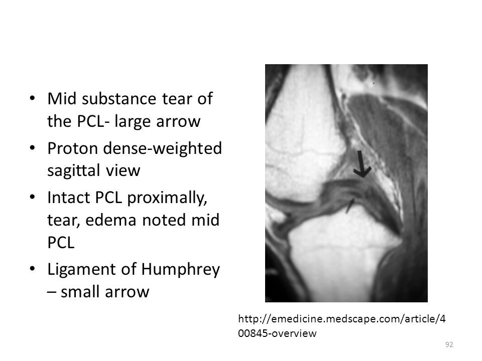 Mid substance tear of the PCL- large arrow