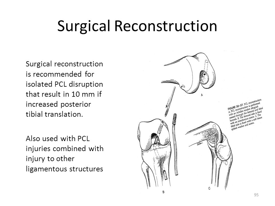 Surgical Reconstruction